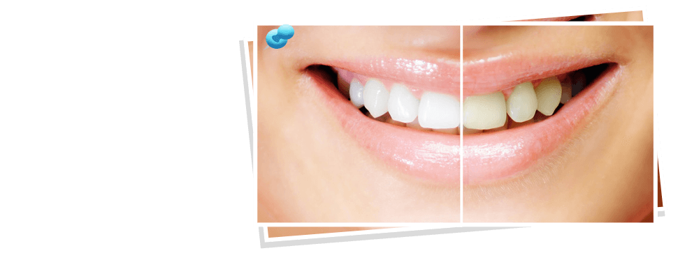 Dental fillings | Richmond, KY | Mark Stephens DMD | 859-626-0069
