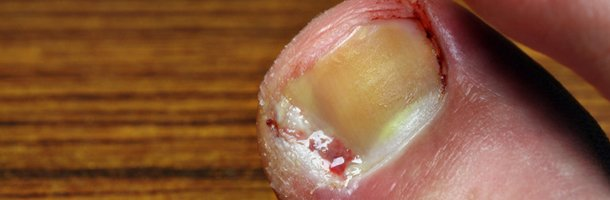 common nail problems | New Haven, CT | Richard B. Feldman D.P.M., FACFAS, LLC | 203-933-7477