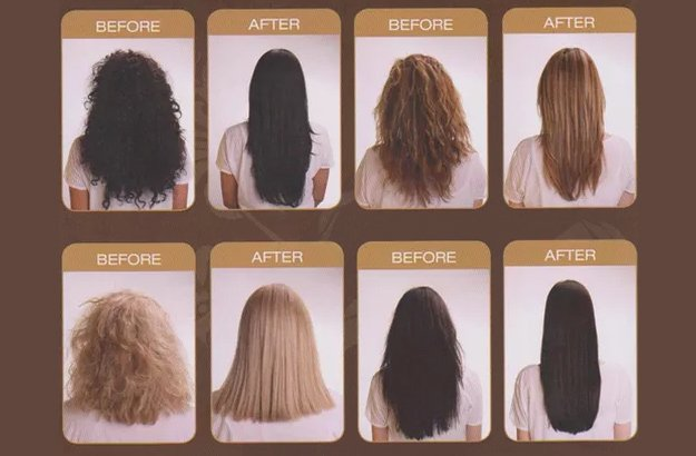 brazilian before and after