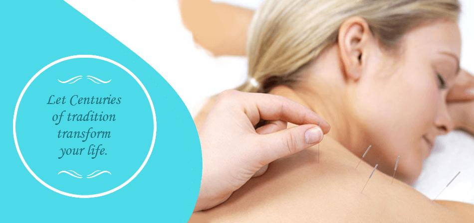 Acupuncture | Burlington, WI | Oriental Healing Oasis & Wellness Center | 262-763-9355