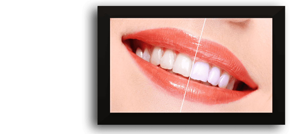 Cosmetic dentistry briarcliff ny give yourself the beautiful smile you deserve cosmetic dentistry solutioingenieria Gallery