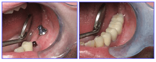 Dental Procdures Before and After Photo Gallery | Ogdensburg, NY | Christopher LaFlair DDS PC | 315-393-2240