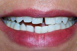 Before dental exam