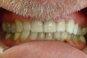 After dental examination