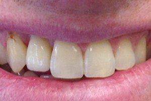 New teeth