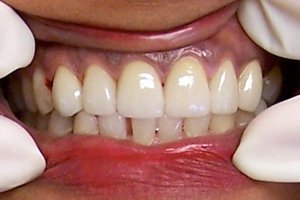 After dental exam