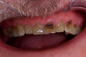 Before dental examination