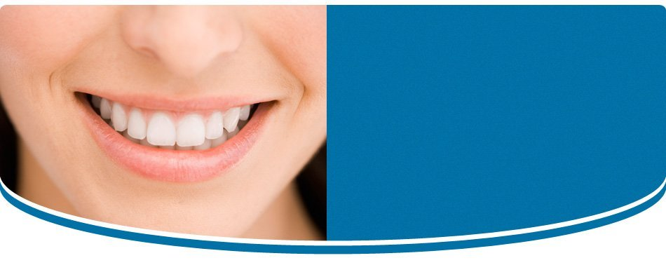 Teeth Whitening | Coon Rapids, MN | Osage Dental Associates PA | 763-757-6600