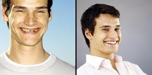Dental Implants | Banning, CA | Dr. Choe Dental Group | 951-893-5935