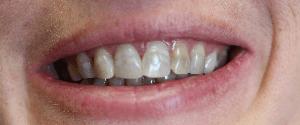 Dental treatment before
