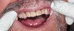 Dental treatment after