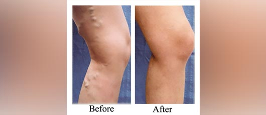 Varicose Vein Before After