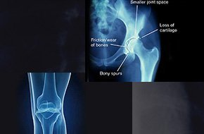 Joint dislocation | Beckley, WV | Orthopaedic & Spine Surgery Associates | 304-253-1077