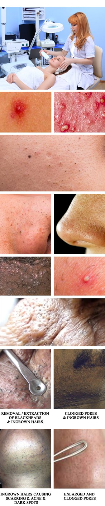 Extractions of Blackheads | Whiteheads | Acne | Rye Brook